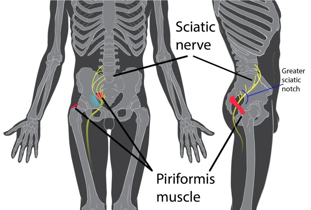 Kein Bandscheibenvorfall: Das Piriformuis-Syndrom klemmt einen Nerv am Popo ein.